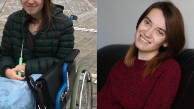 """Photo of Andreea, o tânără de 22 de ani din Sibiu, are nevoie de ajutorul nostru: """"Nu vreau să mai ajung în scaunul cu rotile"""""""